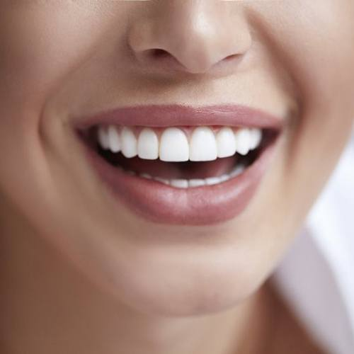 close up person with perfectly straight white teeth